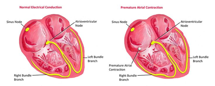 Premature Atrial Contractions (PAC's) While the sinoatrial node typically regulates the heartbeat during normal sinus rhythm, PACs occur when another region of the atria depolarizes before the sinoatrial node and thus triggers a premature heartbeat.