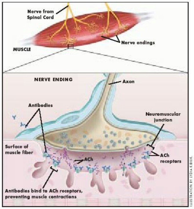 an introduction to the autoimmune disease myasthenia gravis mg Introduction myasthenia gravis (mg) is known as an autoimmune disease  mainly mediated by auto‑antibodies against the acetylcholine receptors (achr).