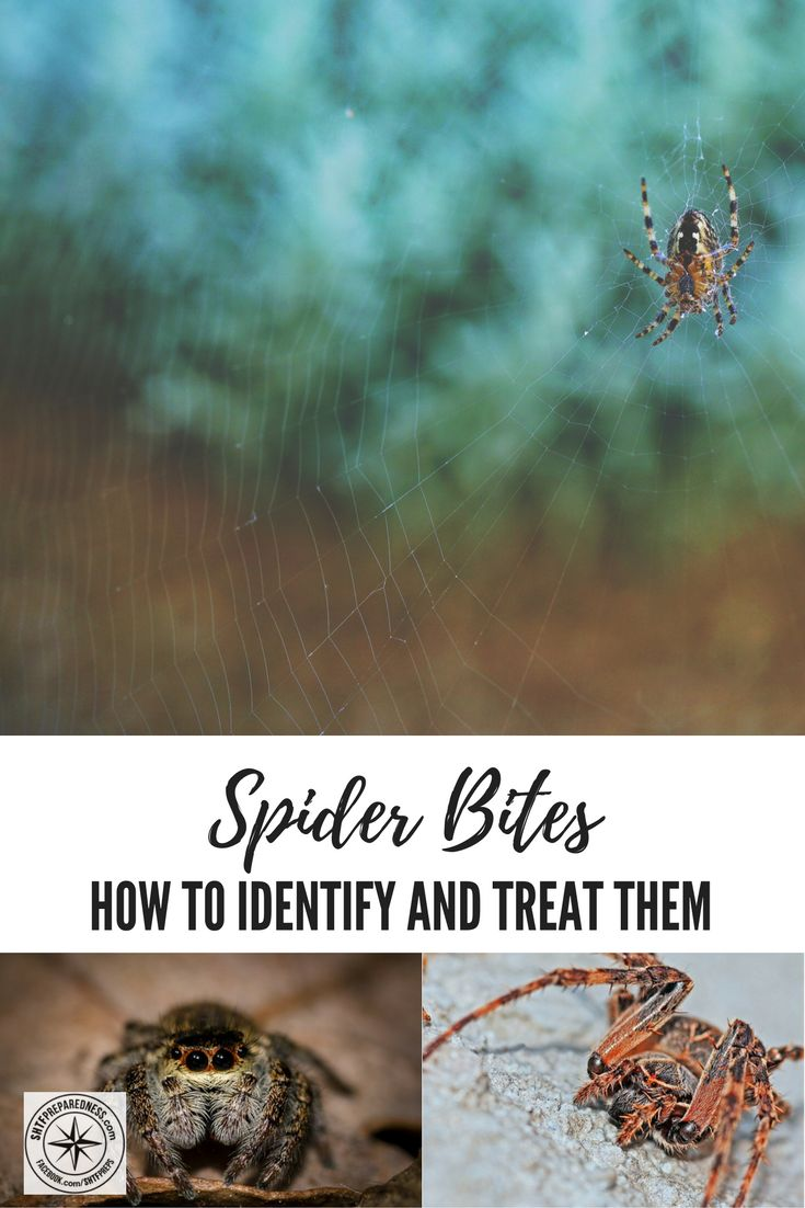 How To Identify Spider Bites And Treat them - See how you can identify a spider bite today!