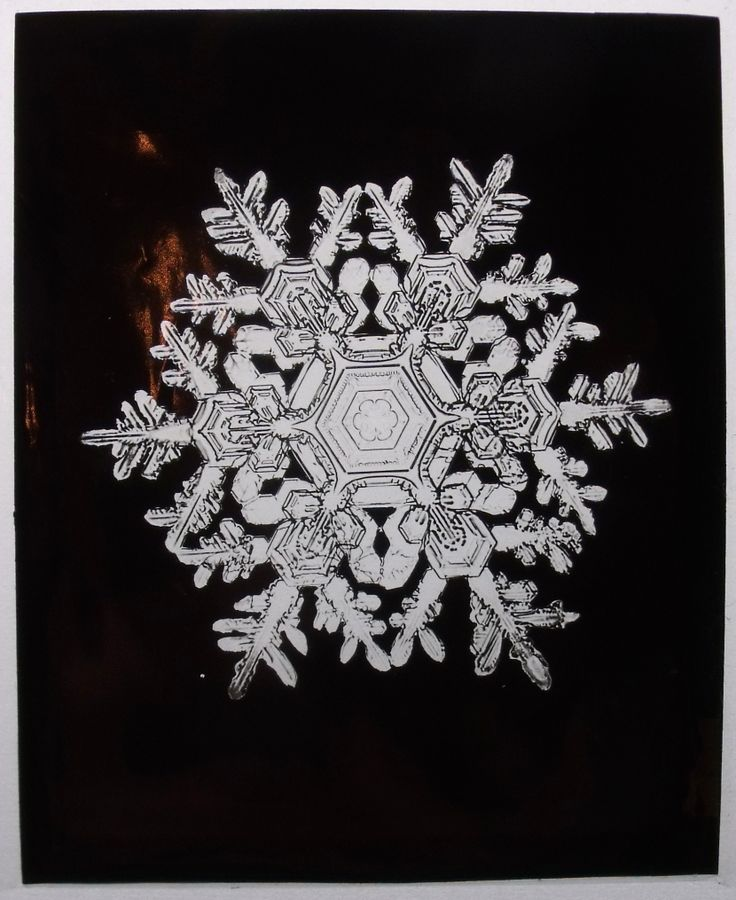 Under the microscope I found that snowflakes