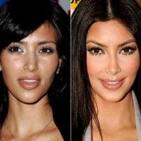 Celebrity nose jobs doctors
