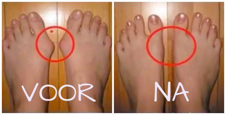 VIDEO: last van voetknobbels? Als je DIT iedere dag even doet zijn ze zo…