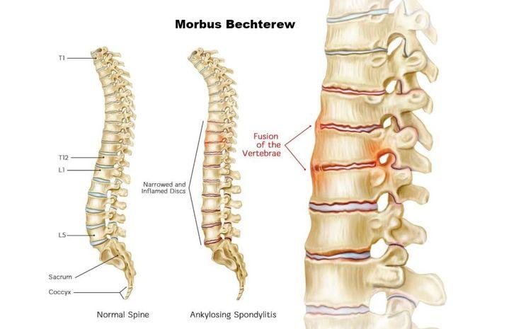 Wie erkennt man Spondylitis Ankylosans (Morbus Bechterew)