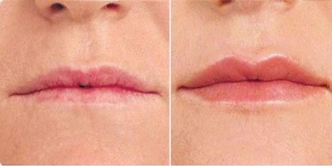 71b969bde4cf7309a040e55996a62244 - How Often Do You Have To Get Your Lips Refilled