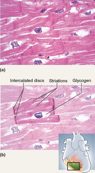 This photo displays cardiac muscle tissue. This tissue type is striated, branched, and has 1-2 nuclei. Cardiac muscle tissue can be recognized by intercalated disks (dark thickened part). Cardiac muscle cells are bigger than smooth muscle cells and smaller than skeletal muscle cells. They control involuntary movement (the heart).
