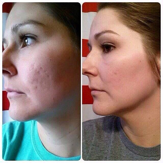 Have acne scars or any scars for that matter? R+F has something for that! Clinically proven skincare that actually gives real results when used consistently. Check out Barbie Porter's awesome before and after pic! She started with UNBLEMISH for a few months and recently started incorporating the MIcro-dermabrasion Paste & AMP MD Roller with the Night Renewing Serum! These are incredible results! Her skin looks amazing! Love these products!