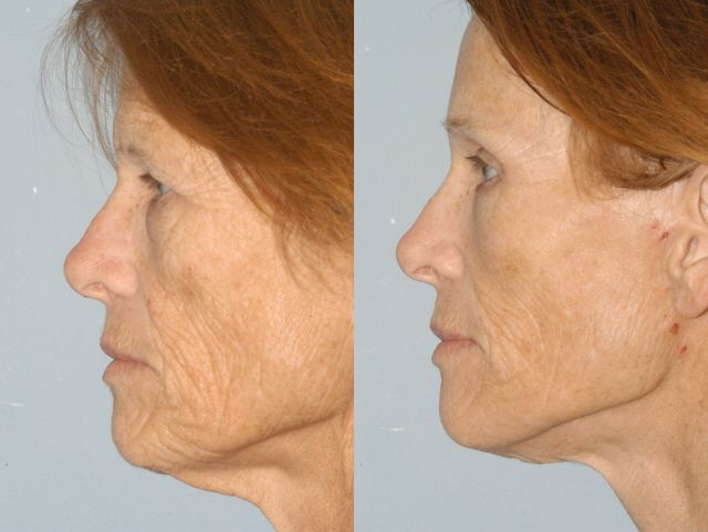 56 year old Facelift improving the lower face, jawline & neck. #Facelift #Jawline #Neck  #Kasvojenkohotus #leuka #kaula #posket