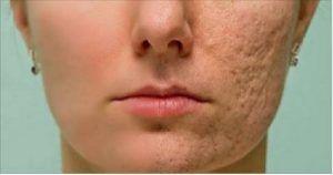 La maschera fatta in casa che elimina cicatrici, macchie, rughe e acne