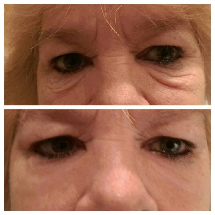 More mind blowing results with Instantly Ageless! I don't know why I am still shocked at the results continue to come in..lol, I have witnessed first hand how AMAZING this product is! How in just 2 minutes or less, my bags, lines, wrinkles just go away..and STAY AWAY for up to 8 hours!!! Are you ready to place your order? Are you ready to battle the appearance of aging? Message me!
