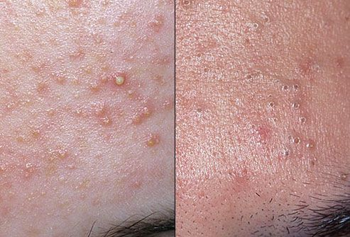 Visit our site http://zrocderm.com/ for more information on Acne Dermatologist.Skin doctor Ft.Lauderdale focuses on the procedure of problems that have an effect on the skin, nails and hair. A few of these health conditions include, however are not restricted to, acne, dermatitis, skin psoriasis, skin cancer cells, moles, mosts cancers and skin growths and so on.