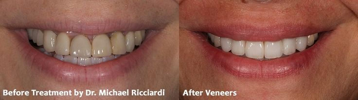 The Porcelain Veneer Smile Makeover #smilemakeover