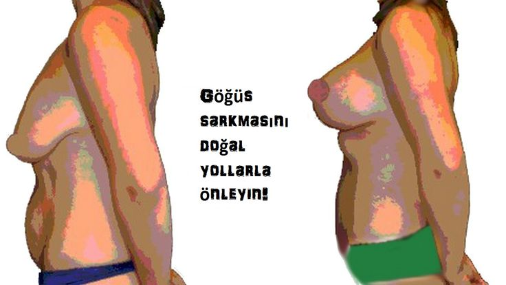 Göğüslerinizin sarkmasını önleyecek doğal tarifler!