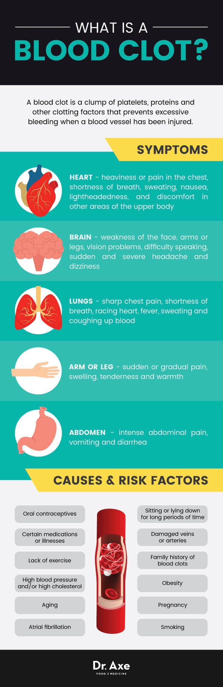 Blood Clots Causes u0026 Symptoms 8