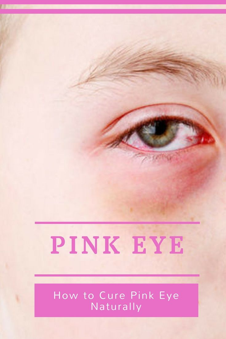 How to Cure Pink Eye Naturally