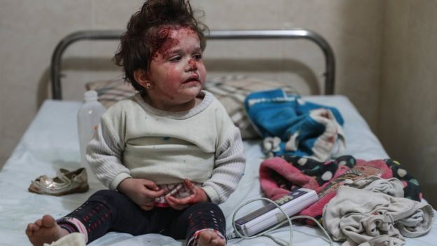 Syrian and Russia military bomb hospitals kill children