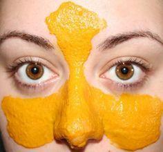Ce masque maison étonnant peut traiter un nombre important de problèmes esthétiques. Cela va des rougeurs, inflammations, taches sombres ou cernes sous les yeux aux…