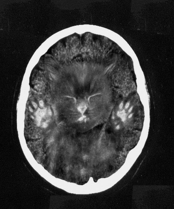 Cat Scan Pic Funny