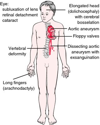 Marfan syndrome - definition of Marfan syndrome by Medical dictionary