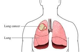 Find out here which vegetable can help you Avoid Lung Cancer.