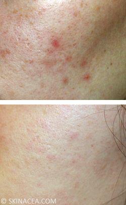 How to Fade Post-Acne Red Marks, Dark Spots, Pigmentation, Etc.   Skinacea.com