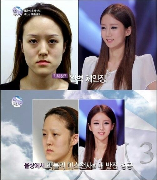 "Today please allow me to introduce myself.  My name`s Mijong Palk,and played on TV show ""Let 美人"" which is very famous in Korea。  This program is working for makeing the people who`s like me becoming beautiful~That`s how i looked before.   I still remember how i cried when i saw the changing of my face。 Thanks so much for giving me my 2nd life.   line : facelinesurgery   kakao : facelineps  whats app 010-4167-0082"