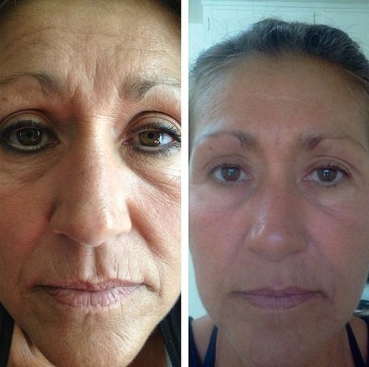 Yoga For The Face And Neck Treatments: Appear Younger And Acquire A Non-Surgical Facelift Via Facial Manipulation Gymnastics