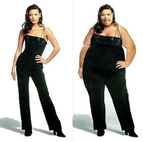 gastric sleeve surgery results - Google Search | bariatric ...