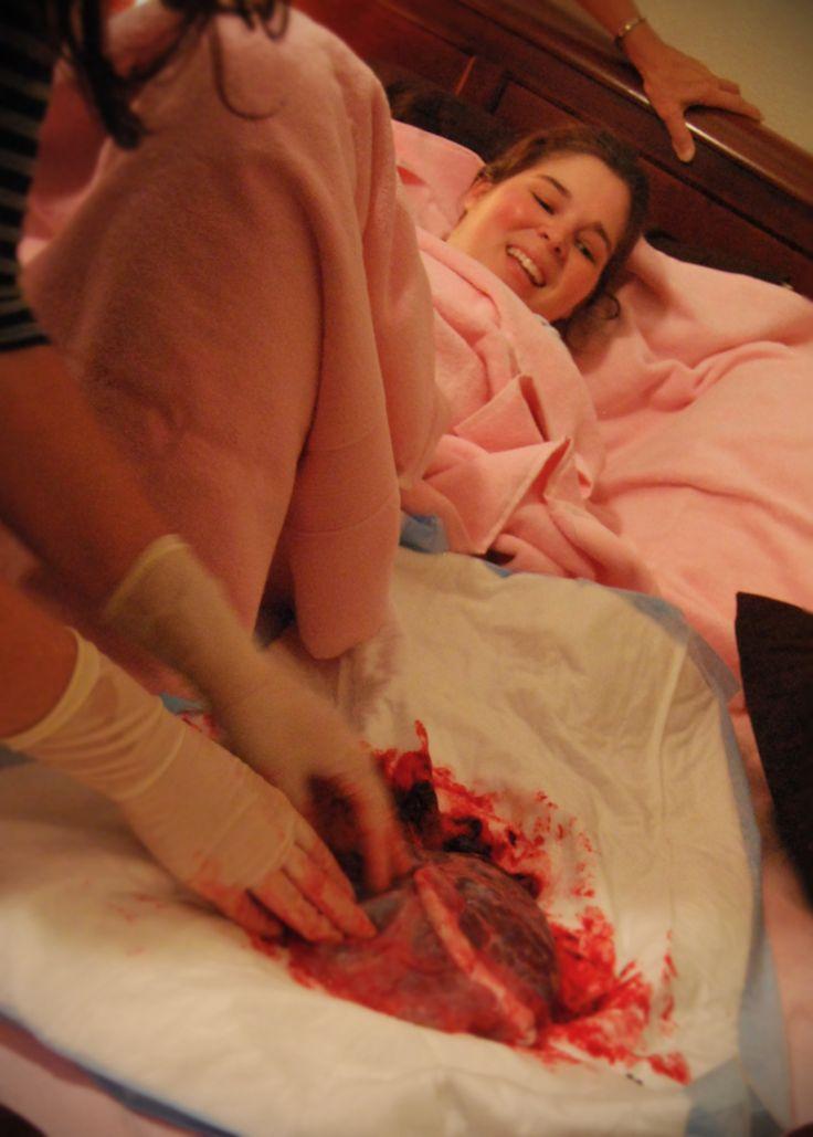 baginal-bleeding-naked