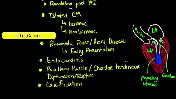 Mitral valve regurgitation and mitral valve prolapse