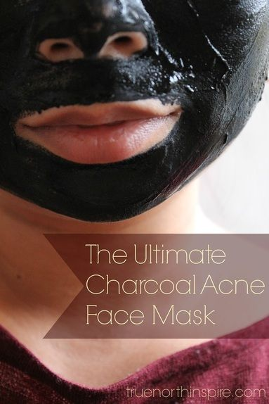 The Ultimate Charcoal Acne Face Mask! DIY and Homemade with just three items! {truenorthinspire.com}