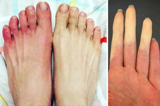 17 Pics That'll Make Raynaud's Sufferers Yawn While Everyone Else Screams In Terror