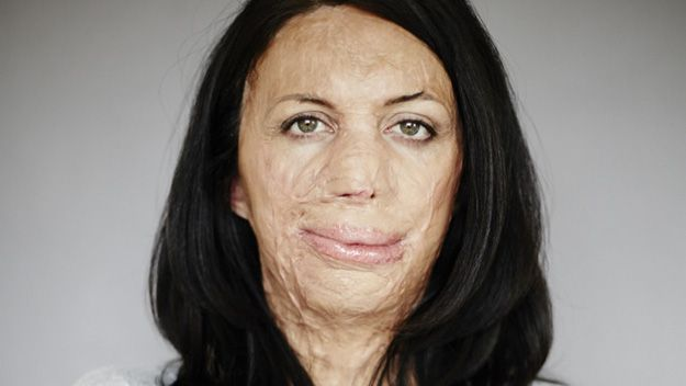Burns survivor Turia Pitt will receive a multi-million dollar settlement from organisers of an ultramarathon in which she became trapped in a bushfire.