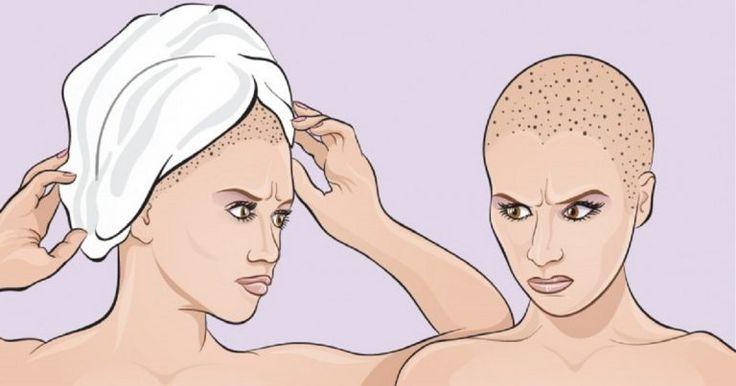 Wickelst du dein Haar nach dem Duschen immer in ein