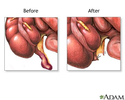 47 best Appendicitis images on Pinterest