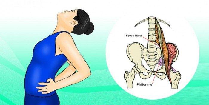 Ischias wordt beschreven als een pijn die begint in de onderrug en daalt naar het been. De pijn varieert door het hele onderlichaam omdat de heupzenuw de langste en breedste zenuw is in het menseli…