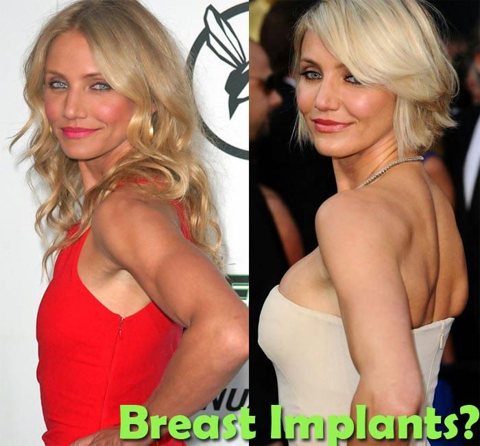 Celebrity Breast Implants Before & After - Celebrity ...