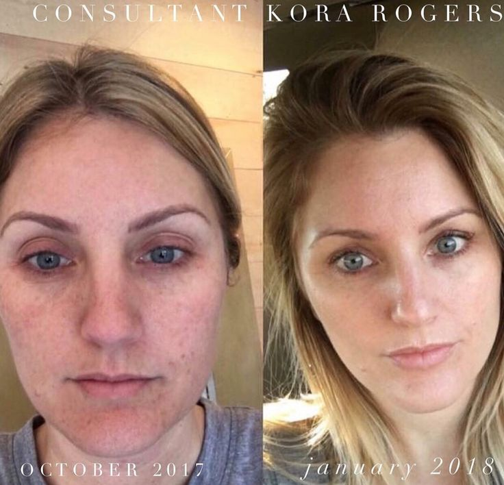 Real changes are possible with the correct products. Just look at my results. I was an Obagi skincare user for years and years. Plus botox and fillers. Now with Rodan+Fields I am botox free and filler free! #rodanandfields #skincare #lashboost #rodan+Fields #reverseregimen #unblemish #mdpaste #workfromhome