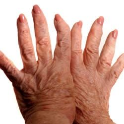 FOODS TO EAT WITH ARTHRITIS