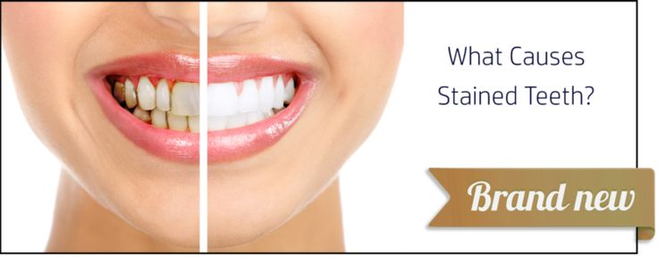 Pin By Fulmer Dentistry On Family Dental Facts Stained Teeth Dental Facts Dentistry