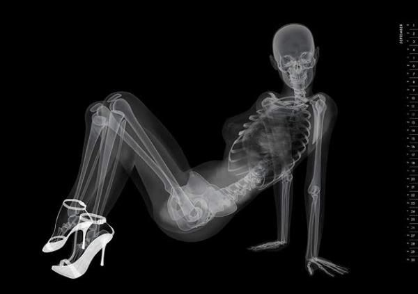 X-Ray pinup calendar. I like drawing bones and I like pinup. So I'm pissed I didn't think of this myself.