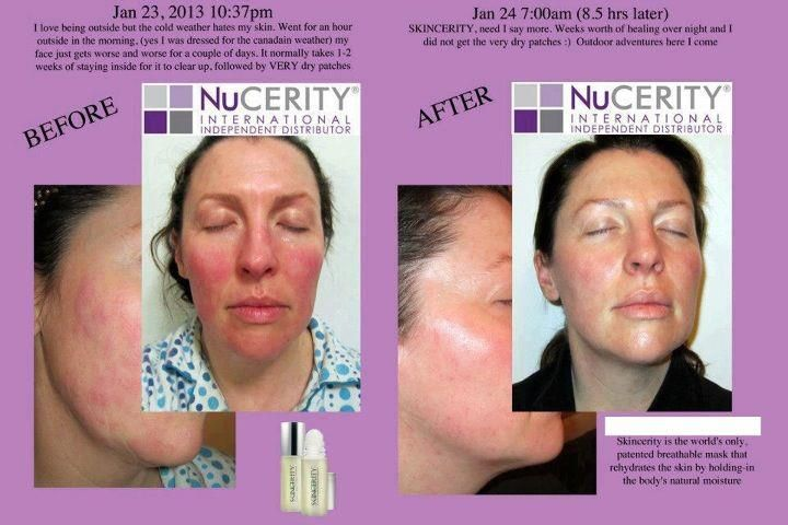 Is it Red, Hot, Swollen.... then try Skincerity www.au.buynucerity.com/FrizzleChristensen #wholenuyoubeautyhealth