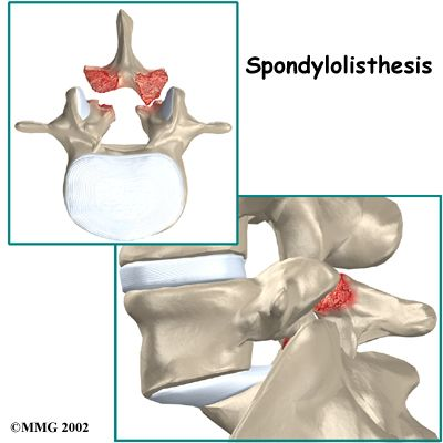 grade 1 retrolisthesis cervical spine Is found mainly in the cervical spine and considered as grade 1 25% to 50% as grade 2 the goal of treating retrolisthesis is to realign the spine, and to do so, a number of things must be accomplished: 1) the joint must be mobilized to.