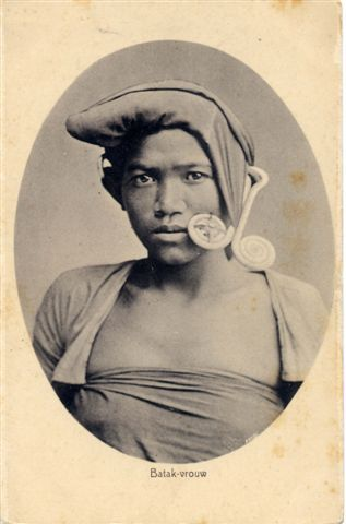 This young Karo woman is wearing a padung-padung, a silver ear pendant, the most well-known type of Batak jewelry.