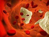 Raynaud's disease is a vasospastic disorder - spasms in the blood vessels lead to vasoconstriction (narrowing).