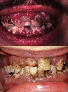 The acid in soda, cocaine, and methamphetamine works similarly to erode teeth. The meth user is on top; the soda addict on the bottom. (Photo courtesy of the Academy of General Dentistry)