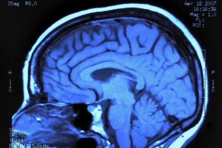 Les cerveaux des hommes et des femmes sont branchés très différemment | Jean-Louis SANTINI | Découvertes Maude C.