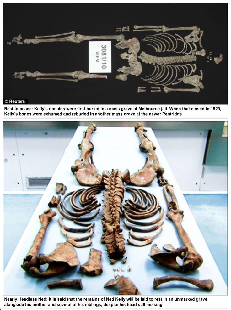 Neds Skeleton