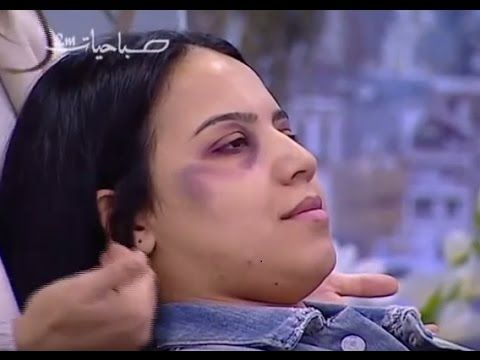 """Outrage Brews Over Domestic Abuse Makeup Tips  Human Rights Watch says Morocco has had a """"lukewarm reaction"""" to aggressive behavior at home throughout the years and the nation's most recent endeavor at managing the issue is probably not going to score any new focuses. A state TV instructional exercise on Channel 2M's Sabahiyat demonstrate a week ago included a cosmetics craftsman indicating how household manhandle casualties can conceal confirmation of wounds with quality beauty care…"""