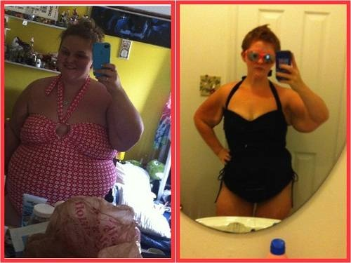 before after pictures weight loss surgery