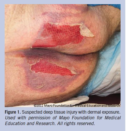 1000 Images About Moisture Associated Dermatitis On